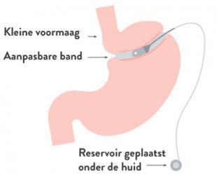 Maagband (gastric banding)