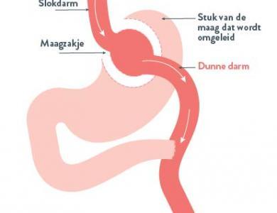 Maagomleiding (gastric bypass)
